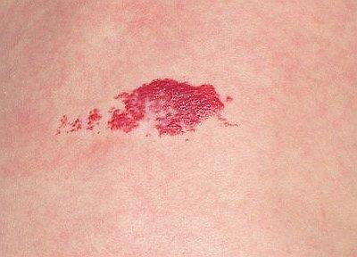 Тромбоцитопатия: дезагрегационная, что это такое, причины