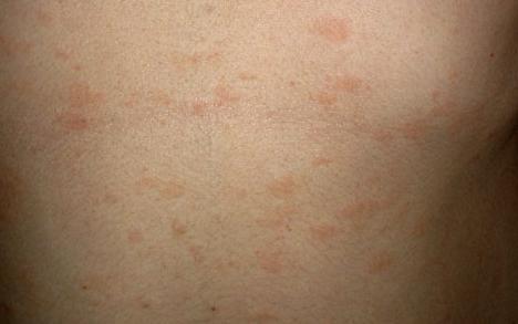 Сыпь на животе у взрослого: без зуда, причины, мелкая