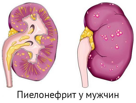 Пиелонефрит у мужчин: симптомы и лечение, хронический