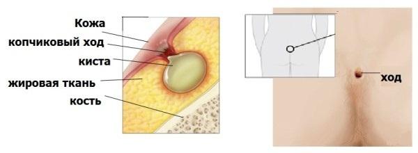 Копчиковый свищ: на копчике, лечение, причины