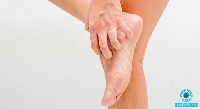 Красные пятна на ногах: ступнях, появились, чешутся