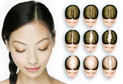 Редкие волосы у женщин: что делать, очень тонкие