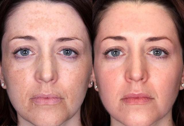 Как избавиться от пигментных пятен на лице: старческих