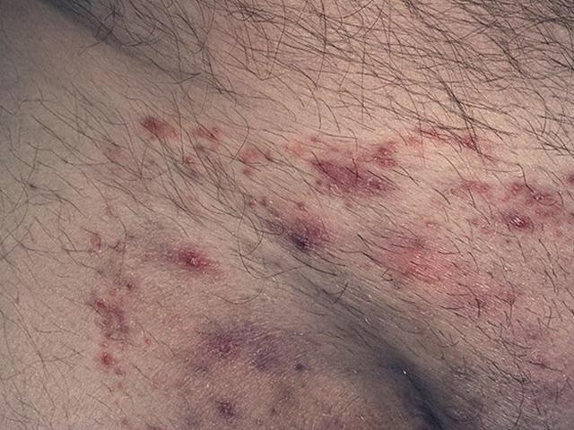 Паховая эпидермофития: лечение грибка в паху