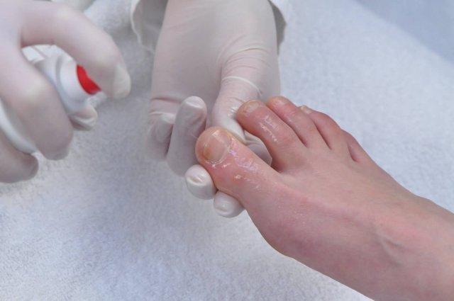 Грибок ногтей на ногах: симптомы, какой врач лечит
