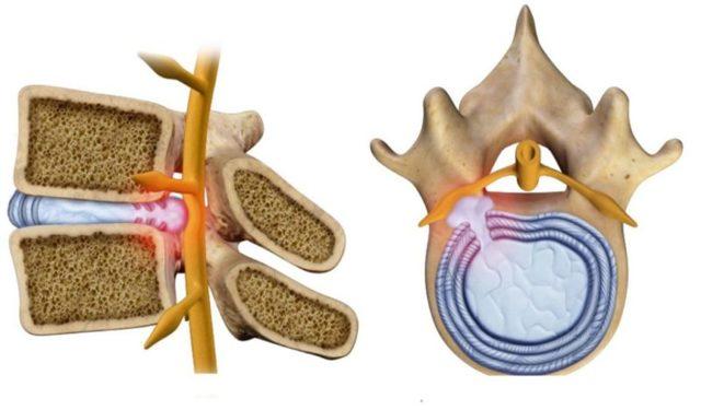 Протрузия межпозвонковых дисков поясничного отдела: лечение