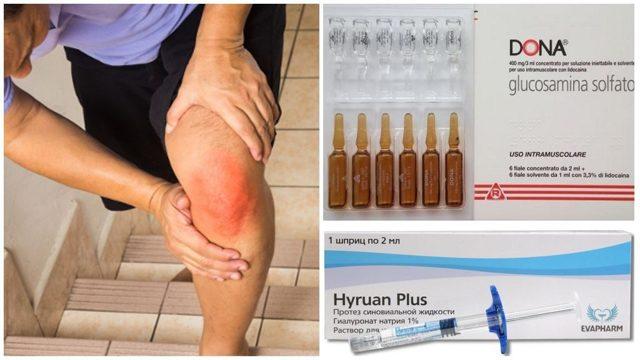 Остеоартроз коленного сустава 2 степени: лечение, деформирующий
