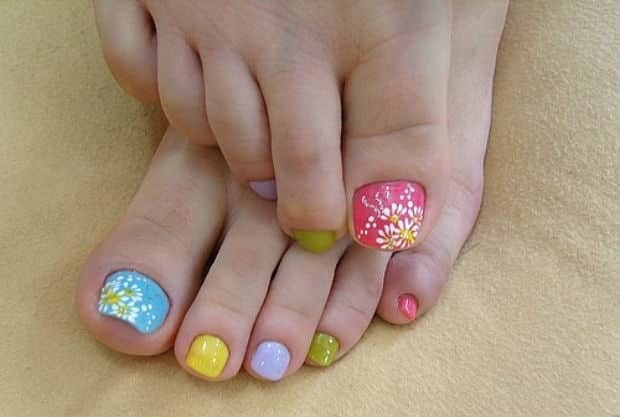 Стержневая мозоль на пальце ноги: лечение, удаление