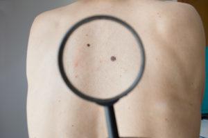Меланома кожи: прогнозы жизни, продолжительность, причины