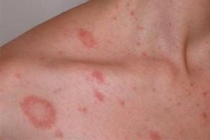 Розовый лишай: причины возникновения и лечение, у человека