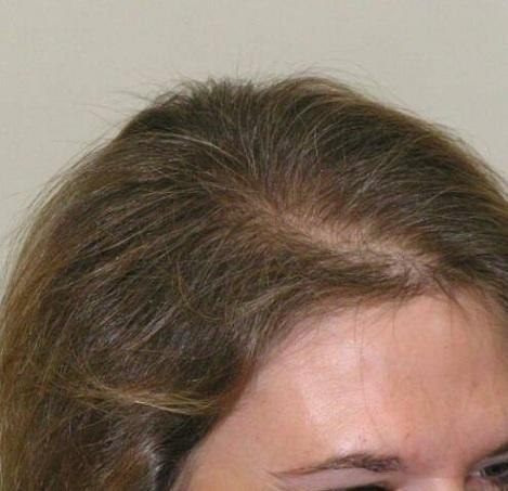 Залысины на голове у женщин: как убрать лысину, избавиться