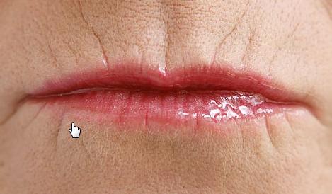 Как убрать морщины вокруг рта: кисетные, упражнения