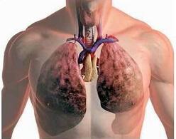 Крупозная пневмония: лечение, у взрослых, исходы, симптомы