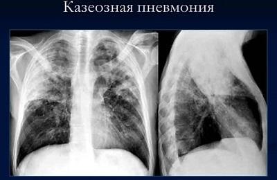Казеозная пневмония: микропрепарат, описание