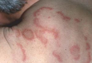Пятна на коже красного цвета: не чешутся, не шелушатся