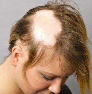 Сильно выпадают волосы после окрашивания: что делать