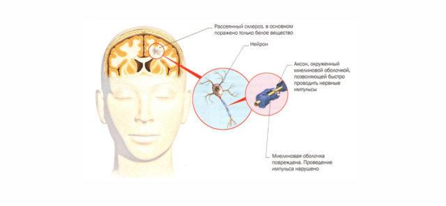 Рассеянный склероз: причины возникновения, от чего