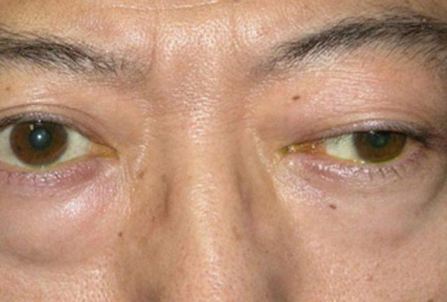 Миастения: симптомы, причины возникновения, лечение и прогноз