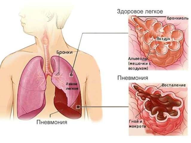 Пневмония, симптомы у взрослых без температуры но с кашлем