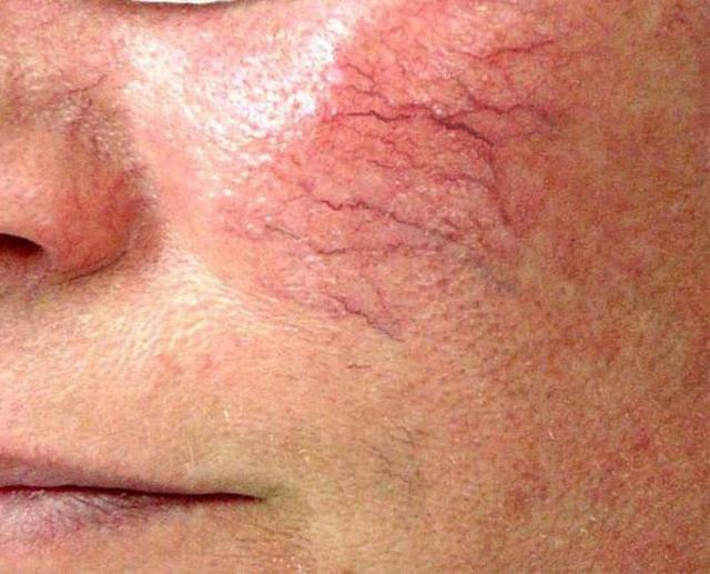 Сосудистые звездочки на лице: причины и удаление, крем, убрать