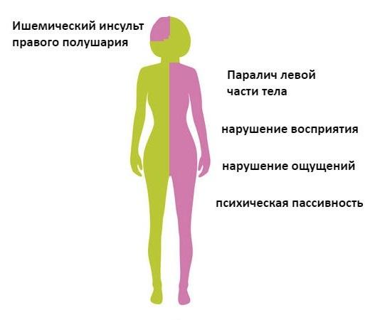 Ишемический инсульт правая сторона: последствия, сколько живут