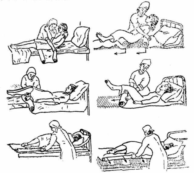 Чем лечить пролежни: в домашних условиях, на ягодицах и пояснице