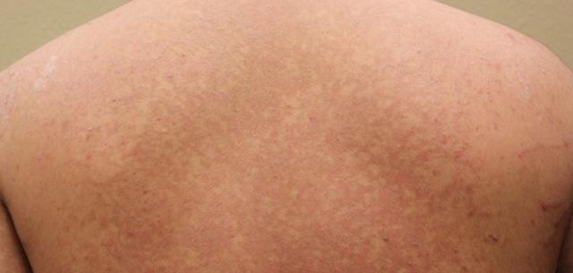 Мазь от лишая на коже у человека: название, цветного