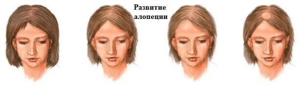 Залысины на лбу у женщин: как скрыть, замаскировать, убрать