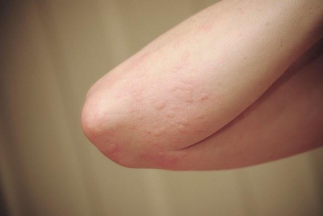Сыпь на локтях: у взрослых, высыпания на коленях, чешутся