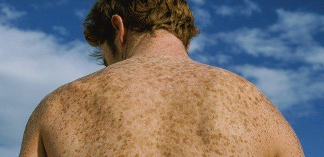 Коричневые пятна на теле: что это и как лечить, причины