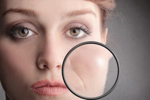 Как избавиться от носогубных морщин: причины, гимнастика, массаж