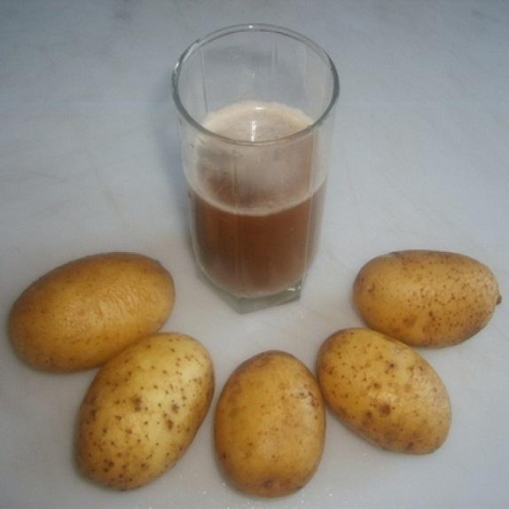 Сок картофеля при гастрите с повышенной кислотностью