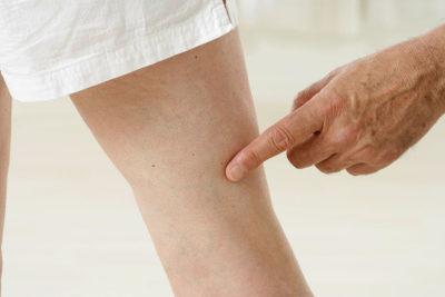 Мазь от варикоза вен на ногах: при варикозном расширении