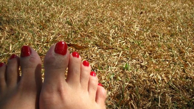 Средство от сухих мозолей на пальцах ног: лечение