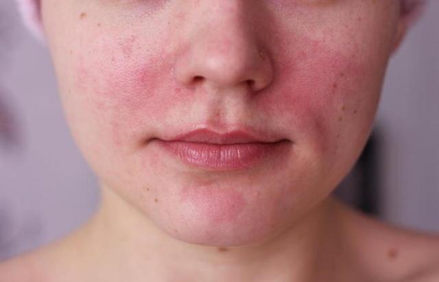 Мазь Релиф от морщин: вокруг глаз, для лица, как применять
