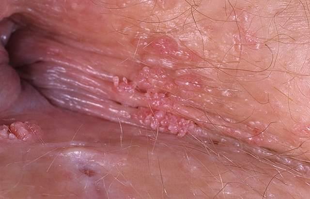Остроконечные кондиломы: лечение, кандиломатоз, удаление