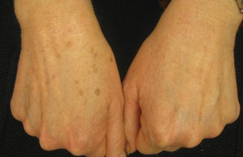 Пигментные пятна на теле: причины и лечение. пигментация, мазь