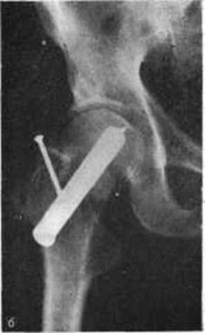 Ложный сустав после перелома: шейки бедра, лодыжки