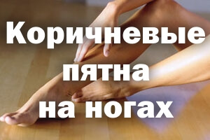 Коричневые пятна на ногах: что это, пигментные, у мужчин