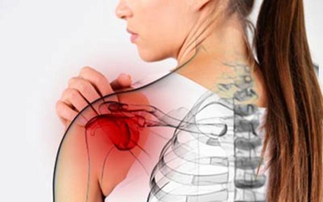 Плечелопаточный периартрит: симптомы и лечение, упражнения