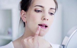 Мазь от простуды на губе: самая эффективная, герпеса