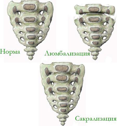 Спондилоартроз пояснично-крестцового отдела позвоночника: лечение