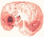 Ишемия сосудов головного мозга: симптомы, лечение, причина