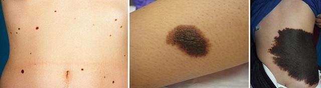 Пятна на теле светло-коричневого цвета: как лечить