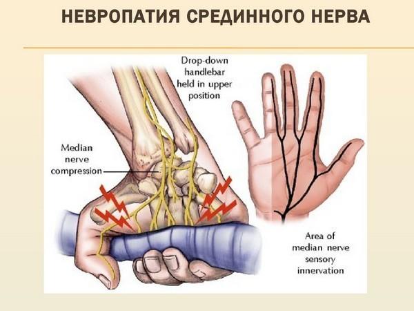 Периферическая нейропатия: симптомы, лечение, сенсорная