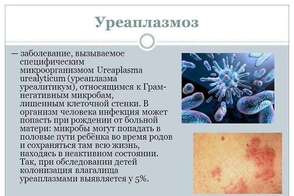 Уреаплазма у мужчин, уреаплазмоз: симптомы и лечение, препараты