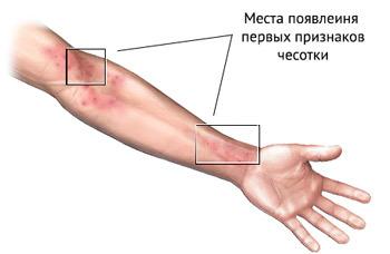 Признаки и симптомы чесотки у взрослых: как проявляется