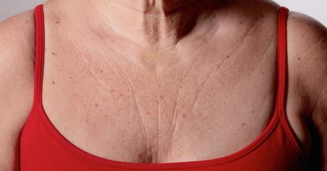 Как убрать морщины на шее: область декольте, избавиться