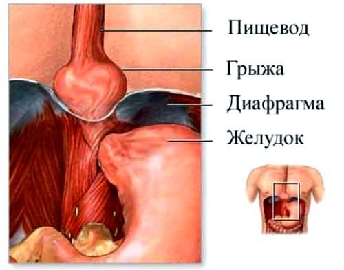 Радикулит поясничный: симптомы и лечение медикаментозное