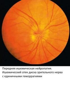 Оптическая нейропатия: глаза, токсическая, глазного дна